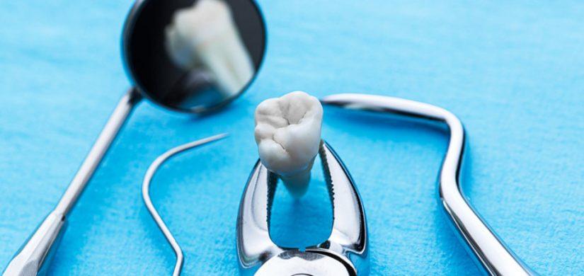 chirurgie orala radauti