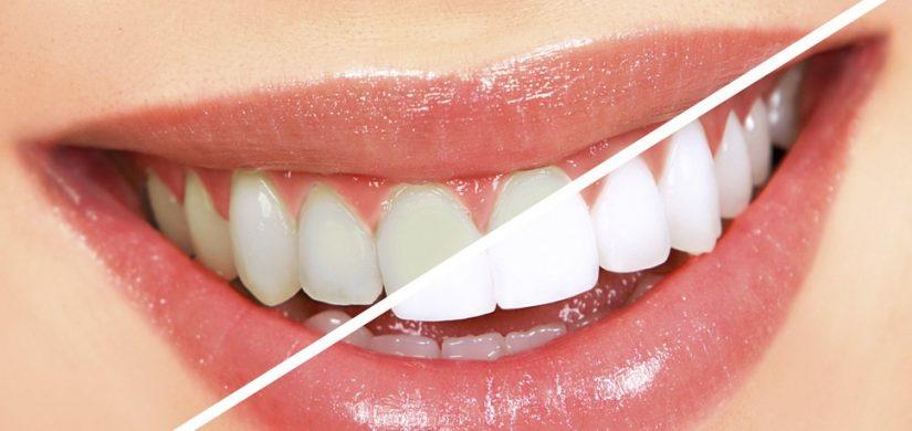 estetica dentara 2