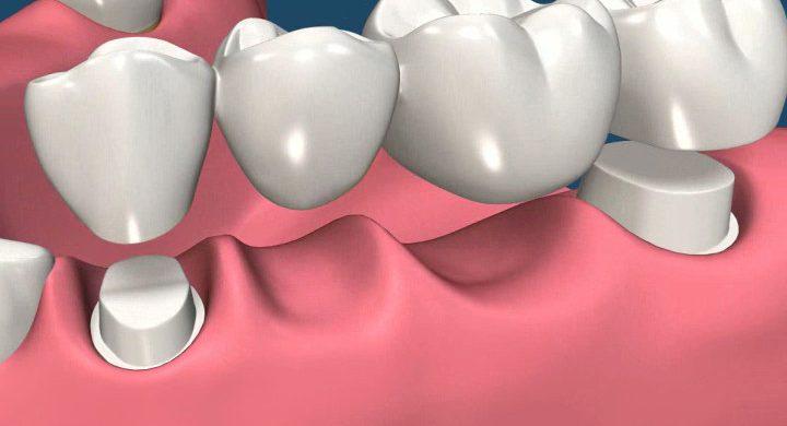 Protetica dentara Radauti